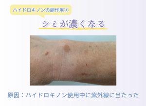 ハイドロキノンの副作用① シミが濃くなる 原因:ハイドロキノン使用中に紫外線に当たった