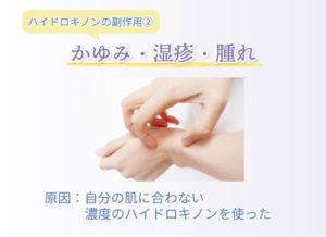 ハイドロキノンの副作用② かゆみ・湿疹・腫れ 原因:自分の肌に合わない濃度のハイドロキノンを使った