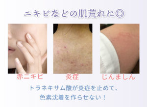 ニキビなどの肌荒れに◎ 赤ニキビ 炎症 じんましん トラネキサム酸が炎症を止めて、色素沈着を作らせない!