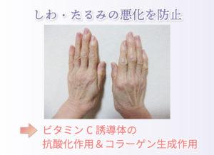 しわ・たるみの悪化を防止 ビタミンC誘導体の抗酸化作用&コラーゲン生成作用