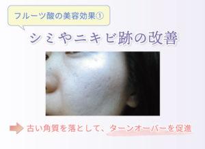 フルーツ酸の美容効果① シミやニキビ跡の改善 古い角質を落として、ターンオーバーを促進