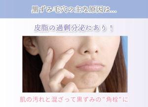 """黒ずみ毛穴の主な原因は… 皮脂の過剰分泌にあり! 肌の汚れと混ざって黒ずみの""""角栓""""に"""