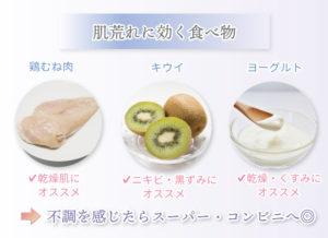 ニキビ原因 食べ物