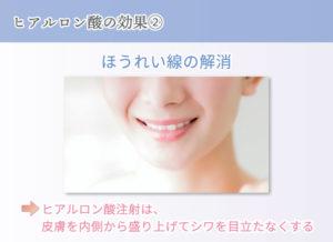 ヒアルロン酸の効果② ほうれい線の解消 ヒアルロン酸注射は、皮膚を内側から盛り上げてシワを目立たなくする
