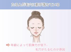 たるんだ毛穴に影が落ちている 年齢によって肌弾力が低下、毛穴がたるむのが原因