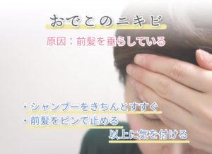 おでこのニキビ 原因:前髪を垂らしている ・シャンプーをきちんとすすぐ ・前髪をピンで止める  以上に気を付ける