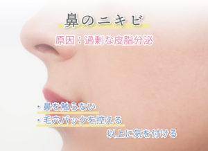 鼻のニキビ 原因:過剰な皮脂分泌 ・鼻を触らない ・毛穴パックを控える 以上に気を付ける
