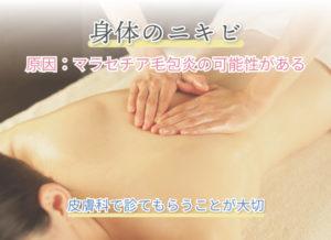 身体のニキビ 原因:マラセチア毛包炎の可能性がある 皮膚科で診てもらうことが大切