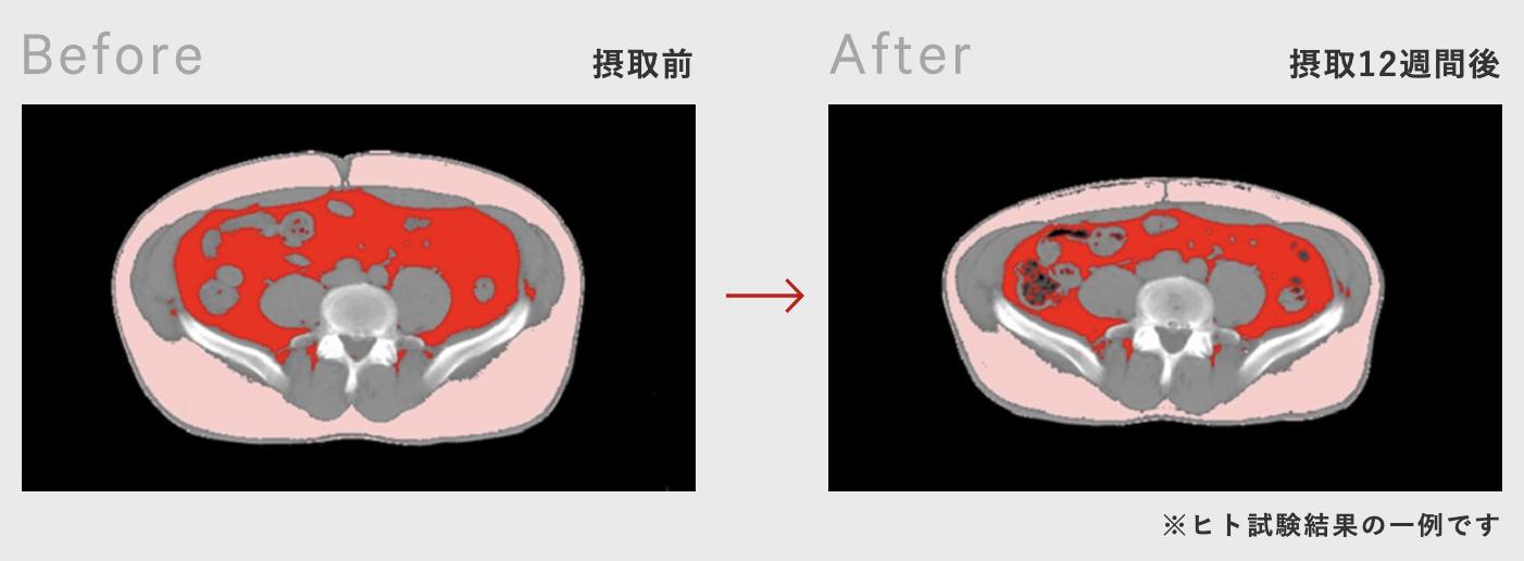 恵のガセリ菌の内臓脂肪減少の効果