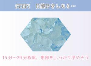 STEP1 日焼けをしたら… 15分〜20分程度、患部をしっかり冷やそう