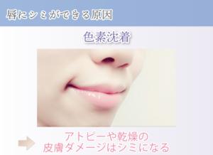 唇にシミができる原因 色素沈着 アトピーや乾燥の皮膚ダメージはシミになる