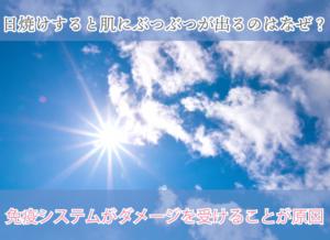 日焼けすると肌にぶつぶつが出るのはなぜ? 免疫システムがダメージを受けることが原因