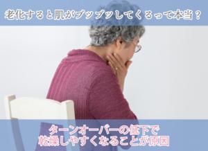 老化すると肌がブツブツしてくるって本当? ターンオーバーの低下で乾燥しやすくなることが原因
