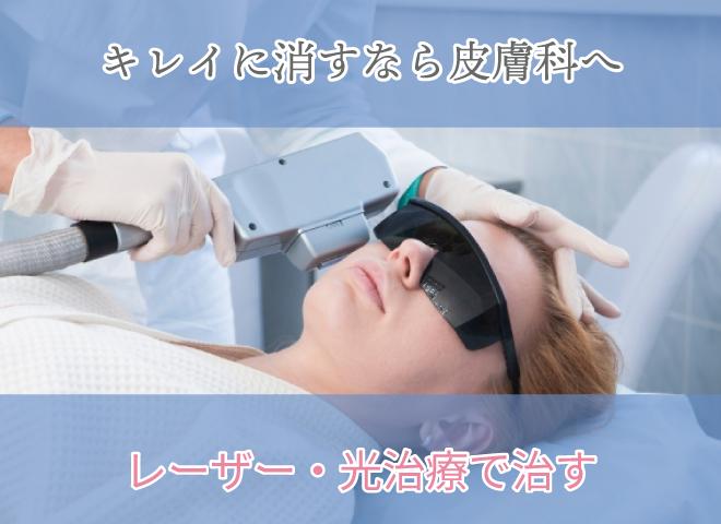 キレイに消すなら皮膚科へ レーザー・光治療で治す